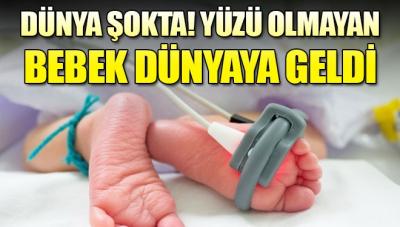 Bebek yüzü olmadan dünyaya geldi!